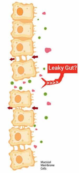 Leaky gut syndrome and your Health